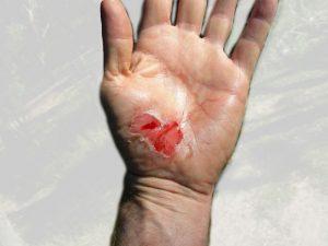 Cut on hand